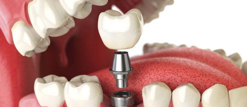 Should I consider dental implants