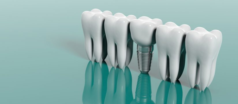 maintenance of dental implants