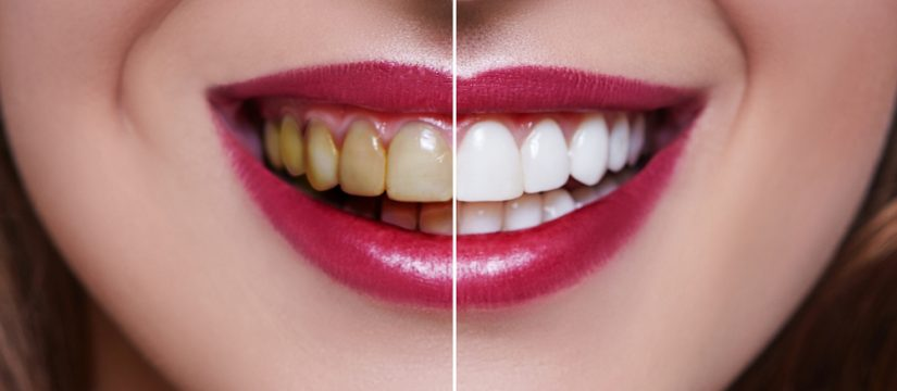 dental veneers - pros and cons