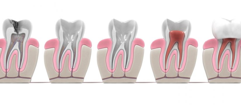 Popular myths about root canal