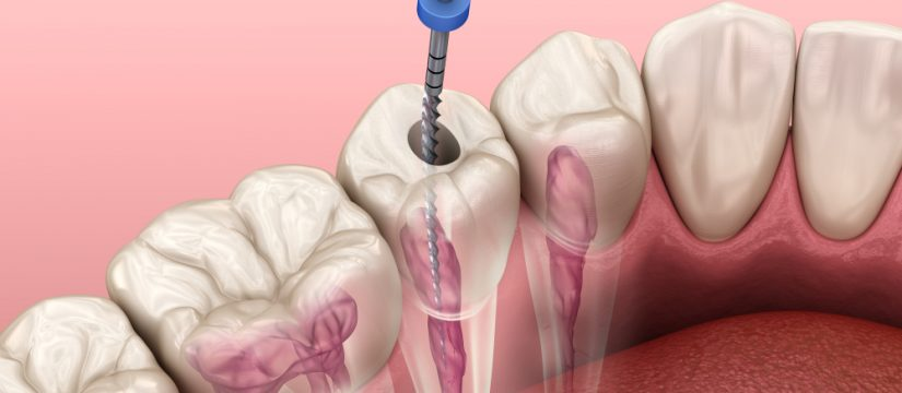 Dental crowns after root canal treatment