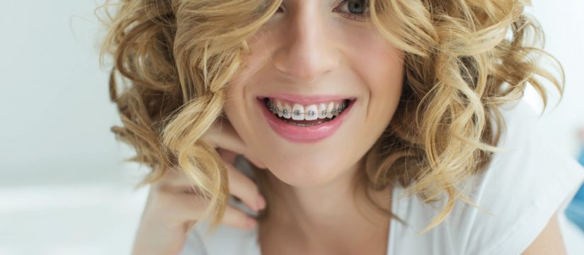 Here are a few things to consider if you want braces