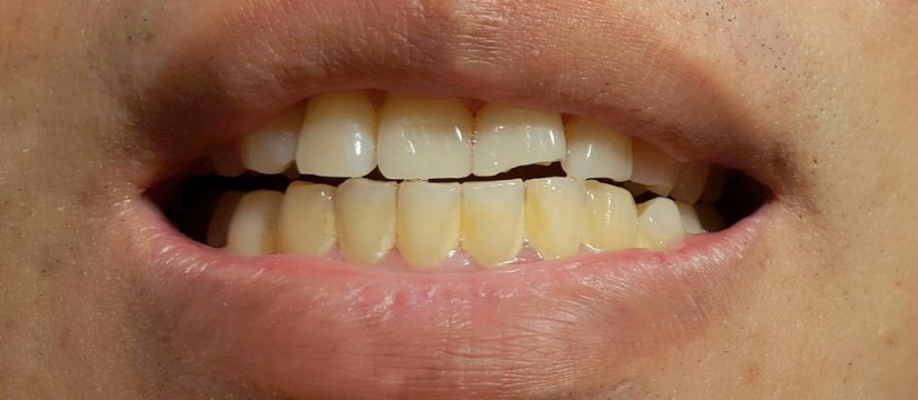 Dental Stains - 4 Things you should know