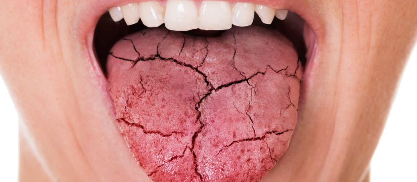 dry mouth - reasons and solutions