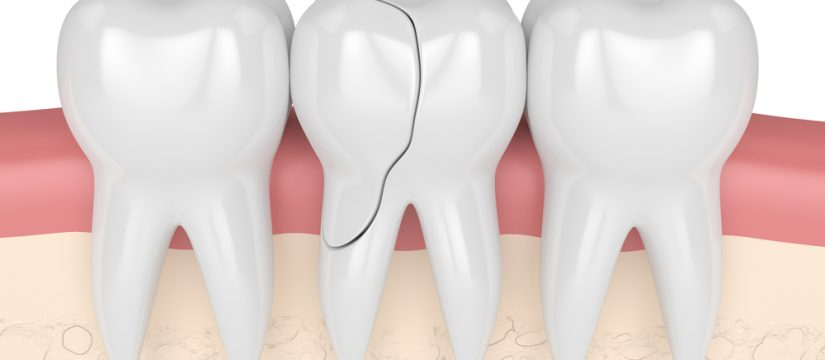 cracked tooth treatments